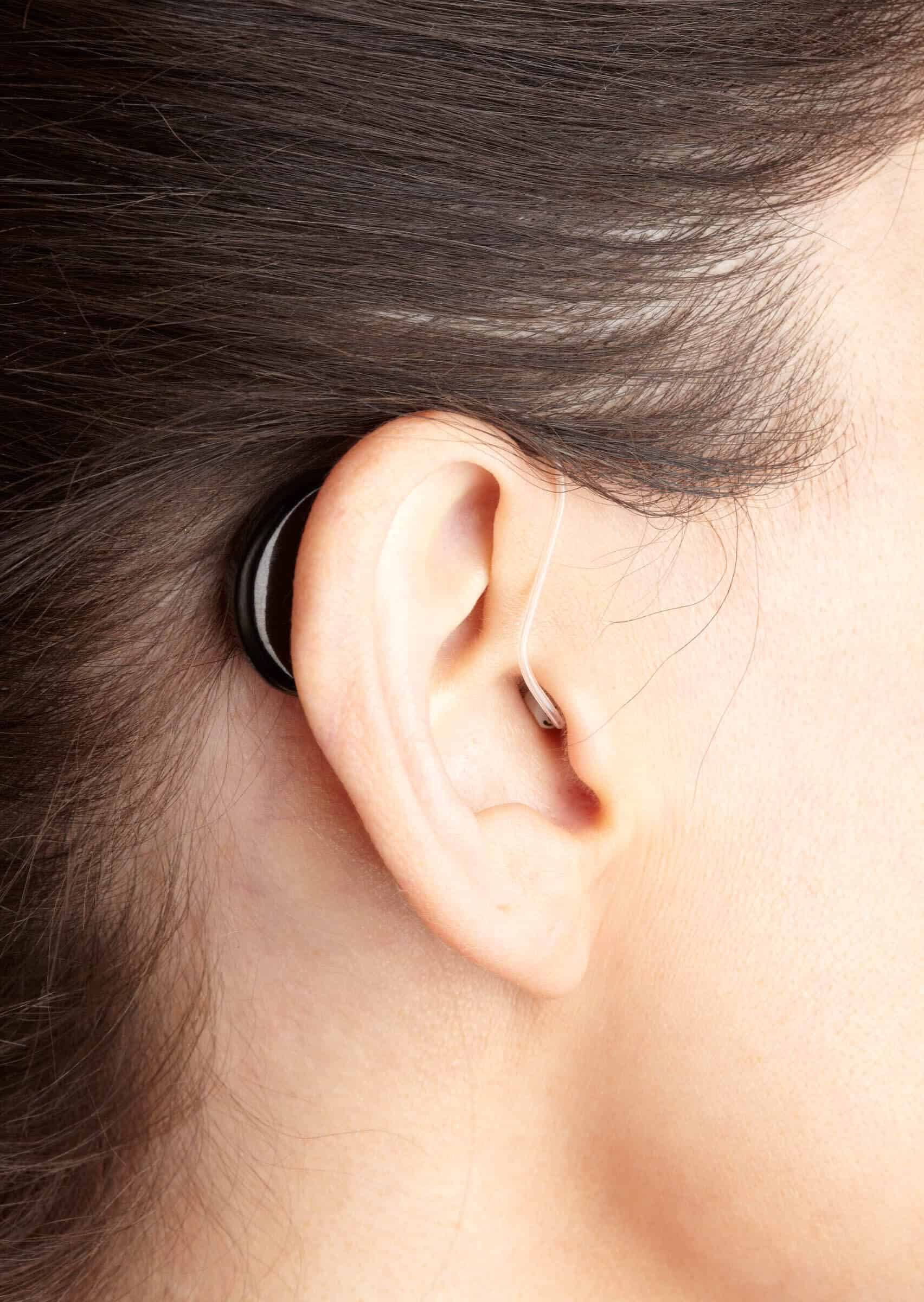 Miracle ear cost